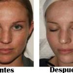 Peeling químico ¿Vale la pena? precio, riesgo, recuperación, tipos de peeling facial
