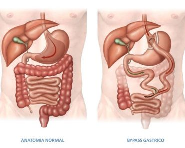bypass-gastrico