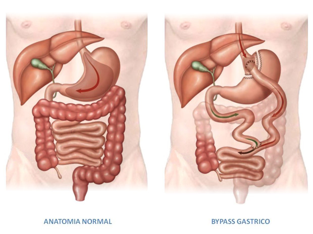 Gastric Bypass Surgery and LAP-BAND Procedure Support Group