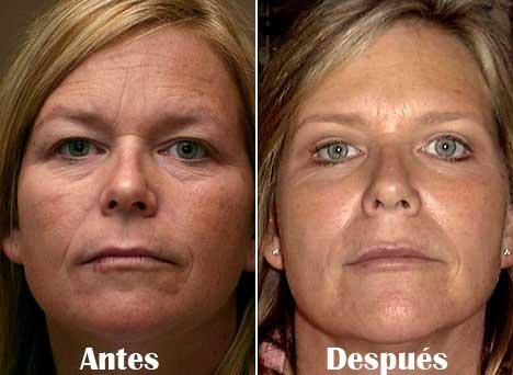 cirugia-de-bolsas-en-los-ojos2
