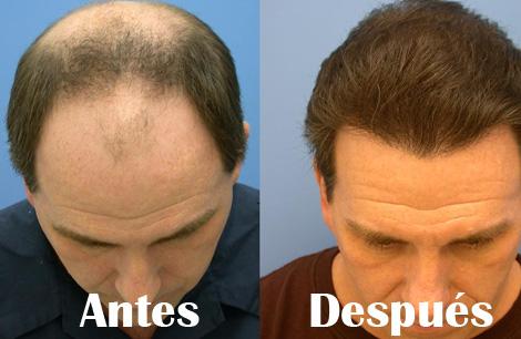 Implantes capilares antes y despues de adelgazar