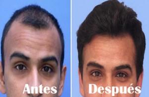 implante-capilar2