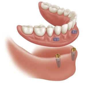 implantes-dentadura