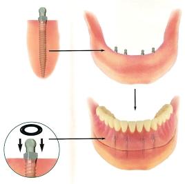 precio de dentadura postiza