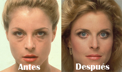 lifting-facial-antes-despues