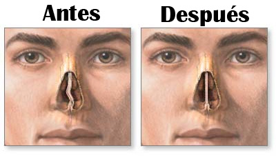 septoplastia