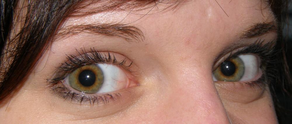 Los hinchazones bajo los ojos en 9 meses