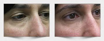 Cirugía de bolsas en los ojos: ¿Vale la pena? precio, fotos y ...