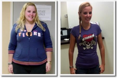 Descubre la alternativa para perder peso