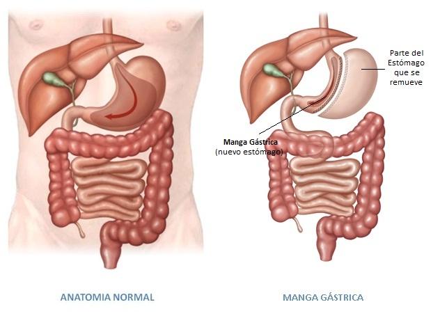 Dieta despues de cirugia manga gastrica
