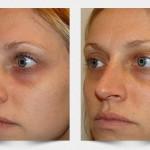 Carboxiterapia para las ojeras – Despigmenta de forma efectiva