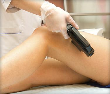 depilacion-laser-alejandrita