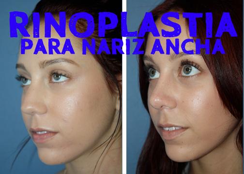 rinoplastia-para-nariz-ancha4