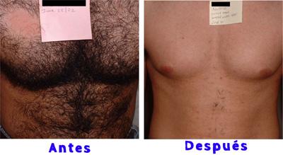 depilacion-laser-definitiva