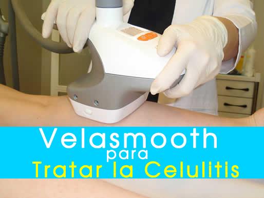 velasmooth-para-tratar-celulitis