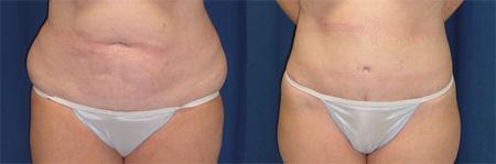 lipectomia-abdominal-2