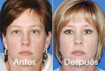 rejuvenecimiento-laser-facial