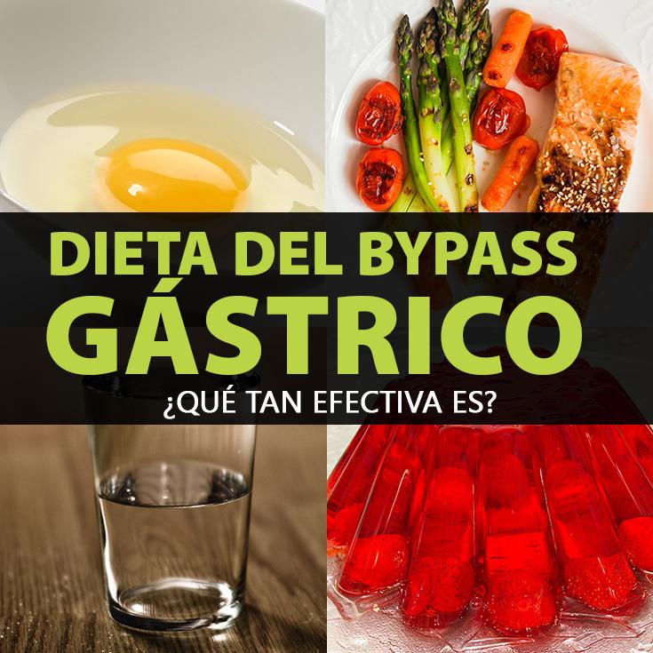 Dieta preoperatoria bypass gastrico