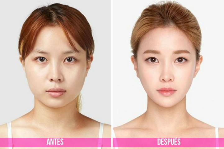antes y despues de la cirugia de linea en v
