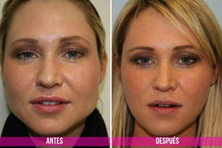 antes y despues de las inyecciones de botox