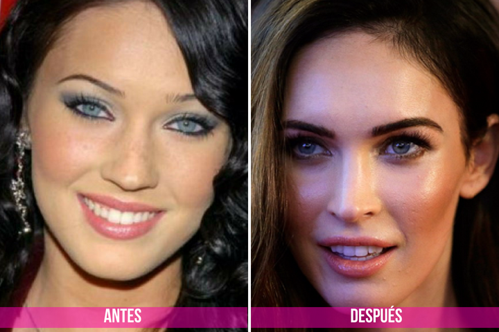 bichectomia de megan fox
